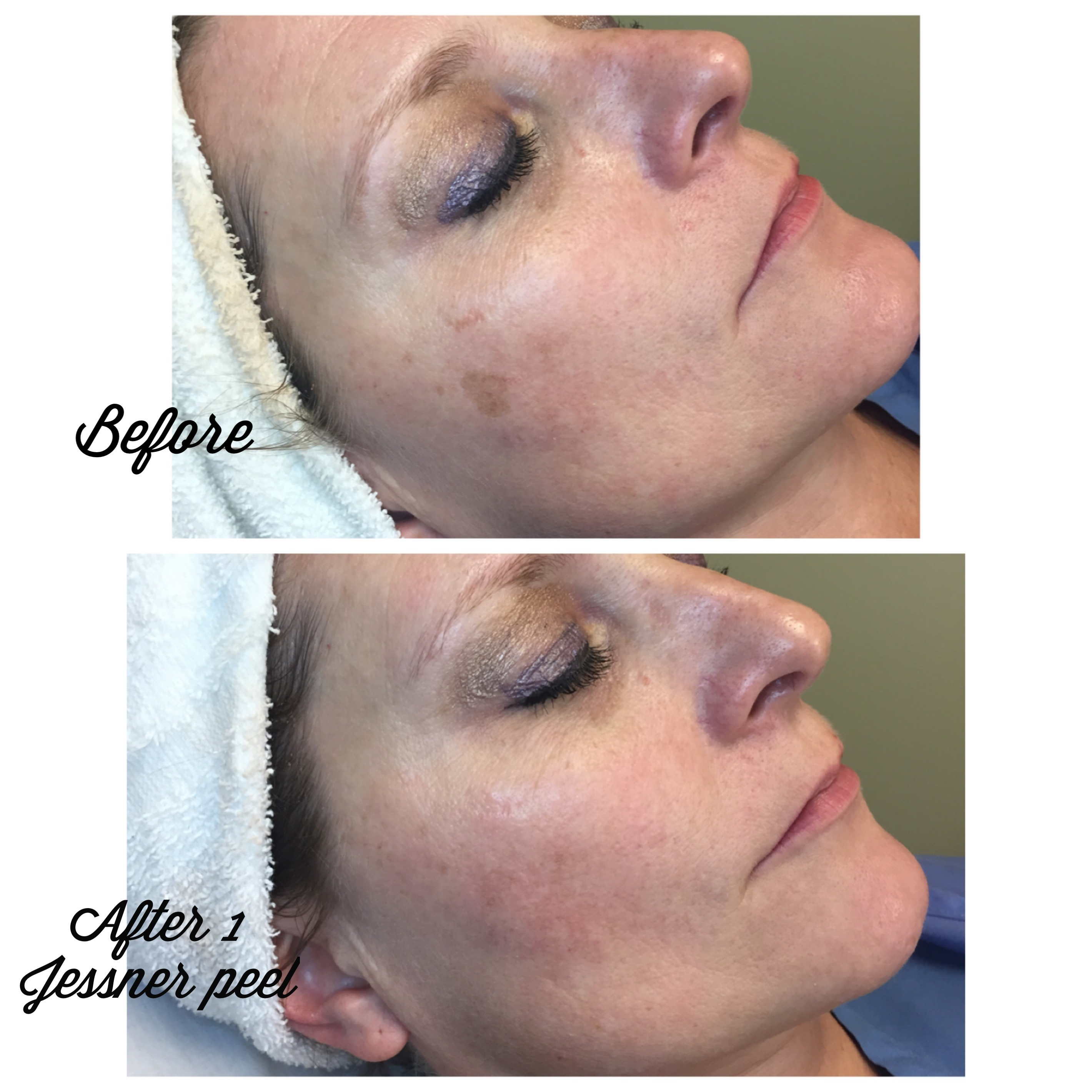 jessner peel, before and after, plastic surgery affiliates, nashville, tn