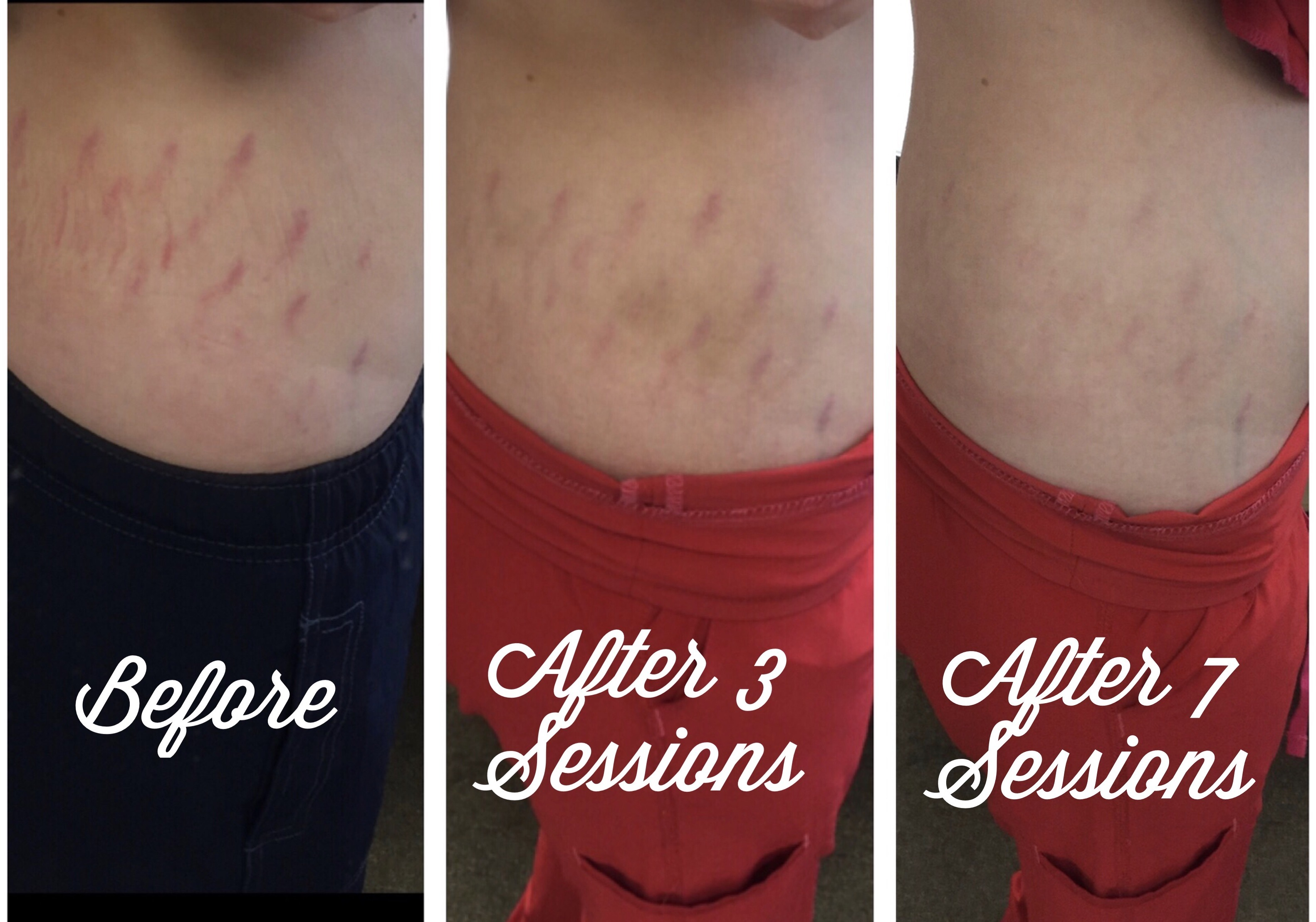 microneedling on stretch marks, before and after, plastic surgery affiliates, nashville, tn