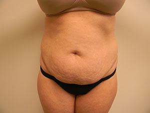 Nashville Tummy Tuck Before Image 1