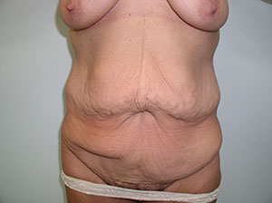 Nashville Tummy Tuck Before Image 3