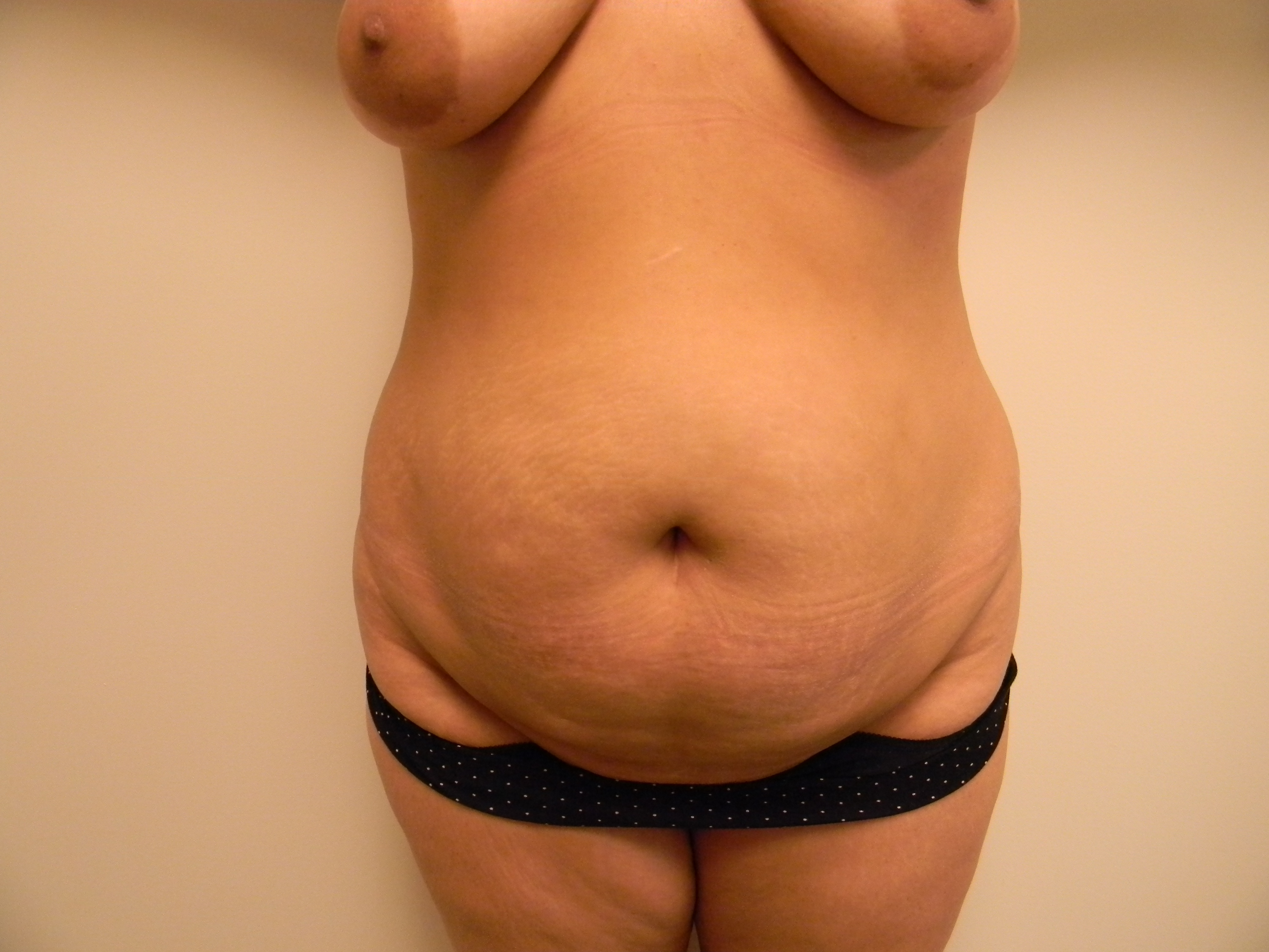 Tummy Tuck Before and After Pictures Nashville, TN