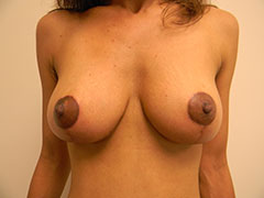 pt1after-breast-lift