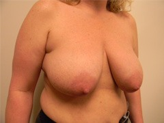 Breast Lift Before and After Pictures Nashville, TN