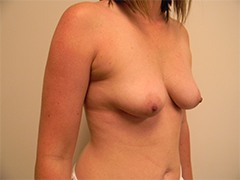 Breast Lift with Implants Before and After Pictures Nashville, TN