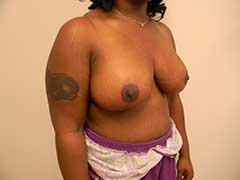 Breast Reduction Before and After Pictures Nashville, TN