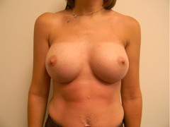 Breast Augmentation Before and After Pictures Nashville, TN