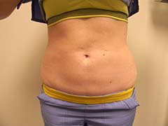 Liposuction Before and After Pictures Nashville, TN