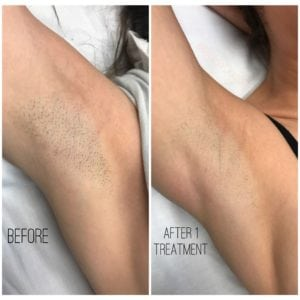Laser Hair Removal Before and After Pictures Nashville, TN