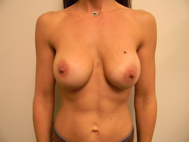 Breast Revision Before and After Pictures Nashville, TN